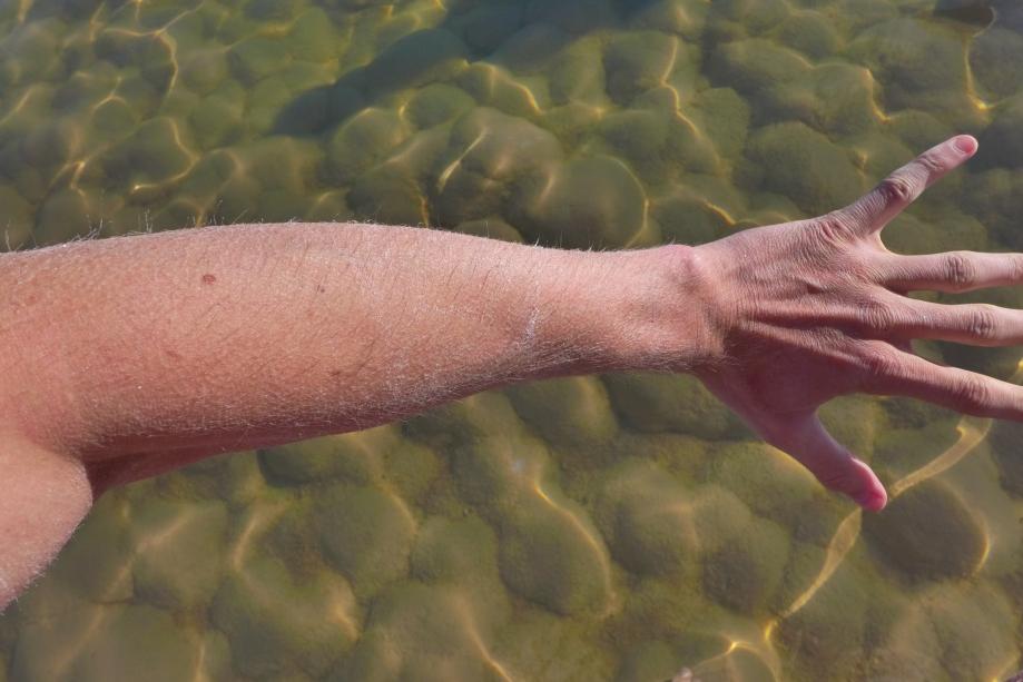 Сашина засоленная рука
